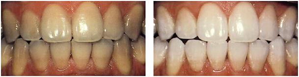Fogfehérítés a fogászatokon